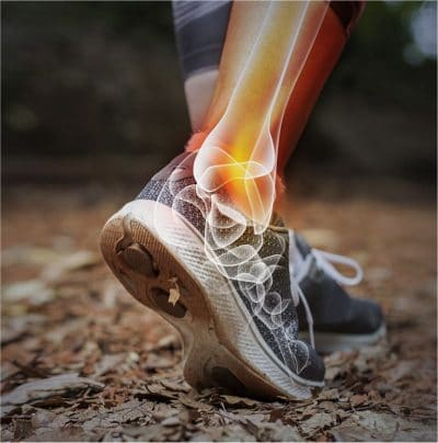 Ankle Pain Image